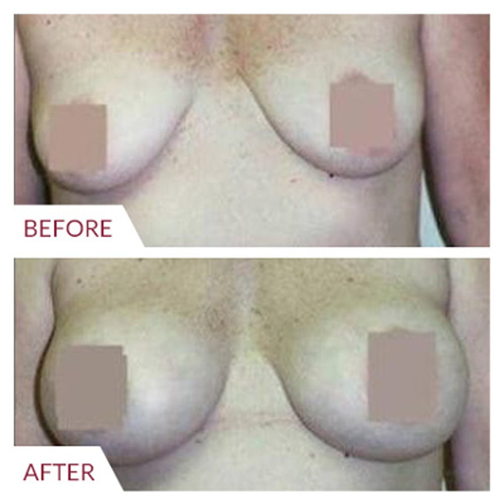Breast Augmentation Gallery - Patient 26868721 - Image 1