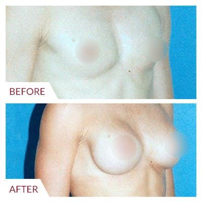 Breast Augmentation Gallery - Patient 26868720 - Image 1