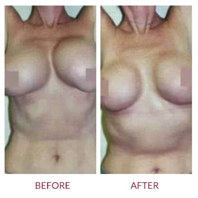 Breast Correction Gallery - Patient 26868734 - Image 1