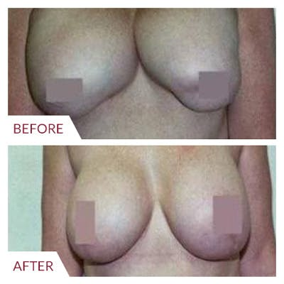 Breast Correction Gallery - Patient 26868733 - Image 1