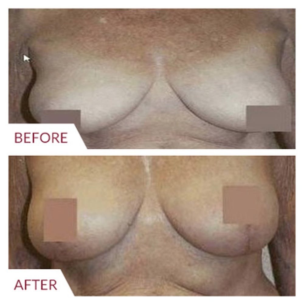 Breast Lift Gallery - Patient 26868750 - Image 1