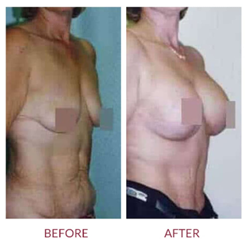 Breast Lift Gallery - Patient 26868749 - Image 1