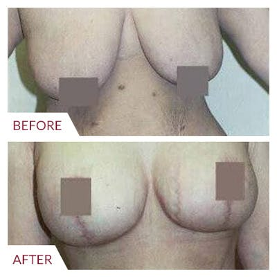 Breast Lift Gallery - Patient 26868748 - Image 1