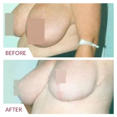 Breast Reduction Gallery - Patient 26868761 - Image 2