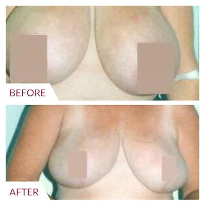 Breast Reduction Gallery - Patient 26868761 - Image 1
