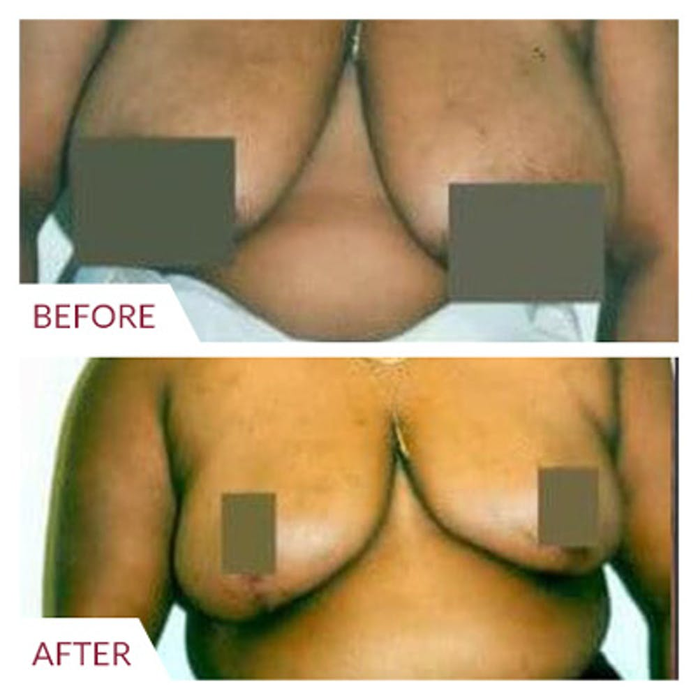 Breast Reduction Gallery - Patient 26868760 - Image 1