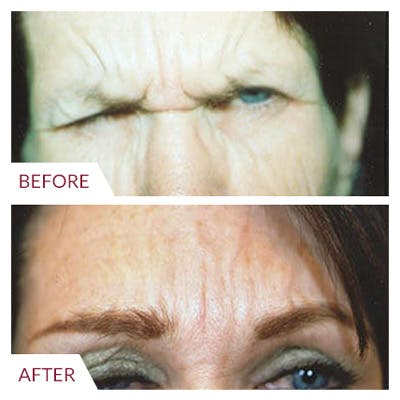 Brow Lift Gallery - Patient 26868781 - Image 1