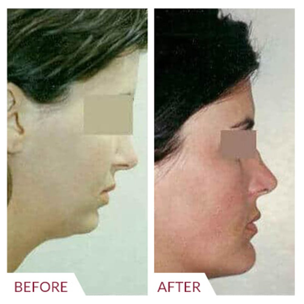 Chin Augmentation Gallery - Patient 26868788 - Image 1