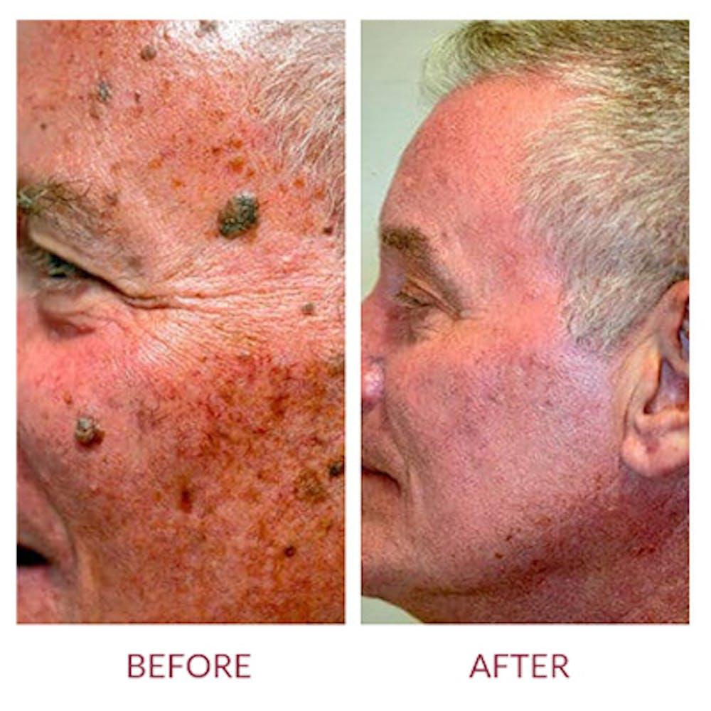 Co2 Laser Resurfacing Gallery - Patient 26868808 - Image 3