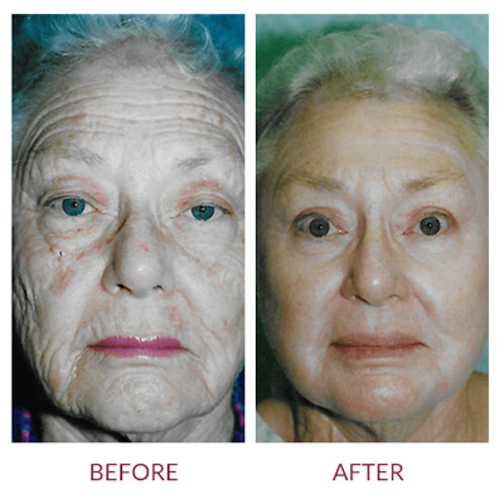 Co2 Laser Resurfacing Gallery - Patient 26868807 - Image 1