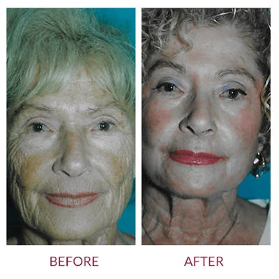 Co2 Laser Resurfacing Gallery - Patient 26868805 - Image 1
