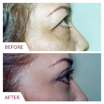 Eyelid Surgery Gallery - Patient 26868838 - Image 4