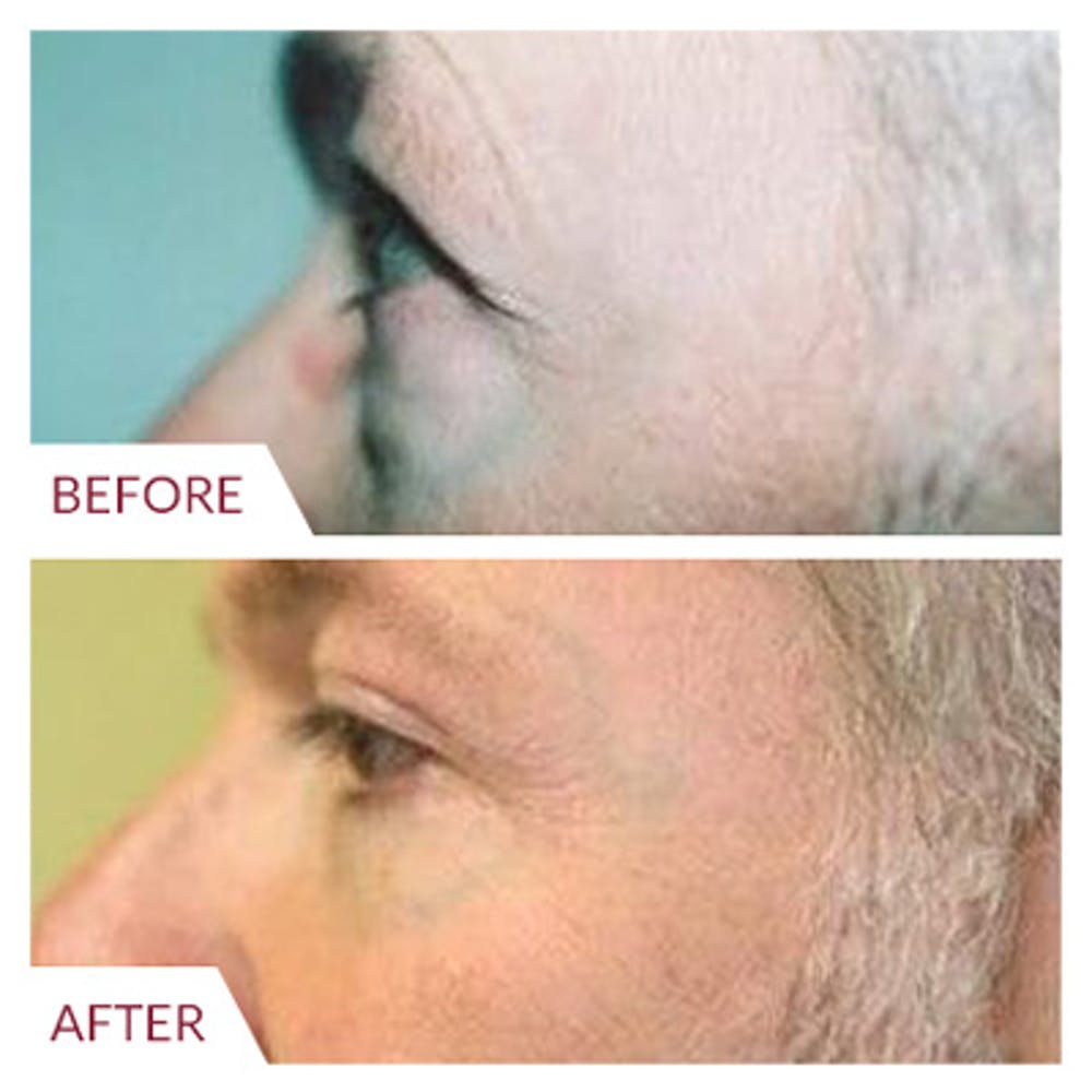 Eyelid Surgery Gallery - Patient 26868841 - Image 1
