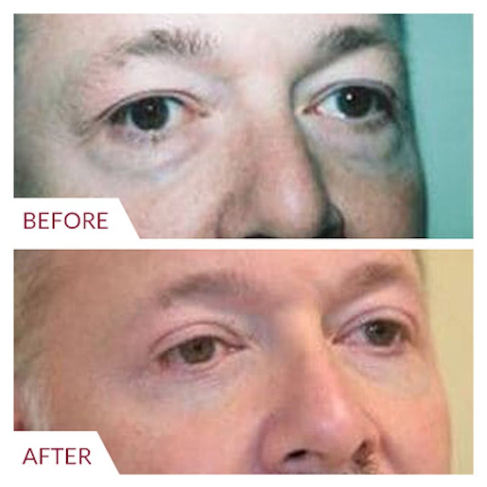 Eyelid Surgery Gallery - Patient 26868840 - Image 2