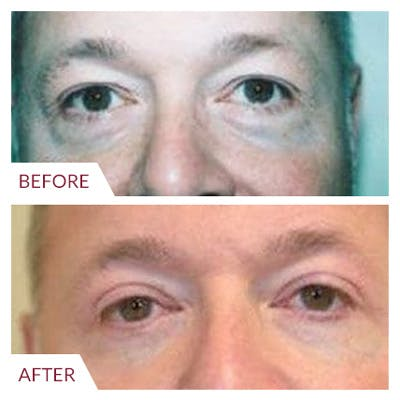 Eyelid Surgery Gallery - Patient 26868840 - Image 1
