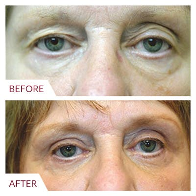 Eyelid Surgery Gallery - Patient 26868839 - Image 1