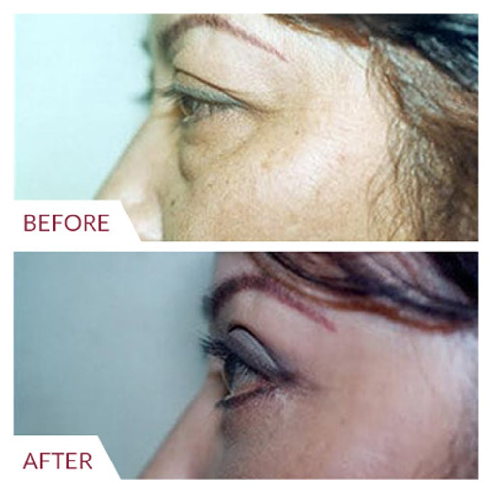 Eyelid Surgery Gallery - Patient 26868838 - Image 3