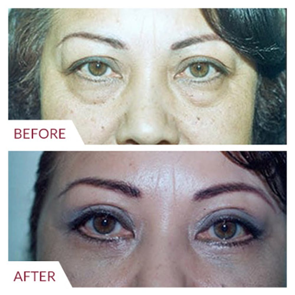 Eyelid Surgery Gallery - Patient 26868838 - Image 2