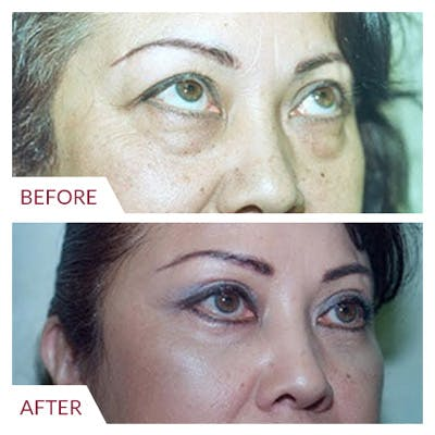 Eyelid Surgery Gallery - Patient 26868838 - Image 1
