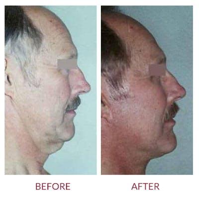 Facelift Gallery - Patient 26870267 - Image 2