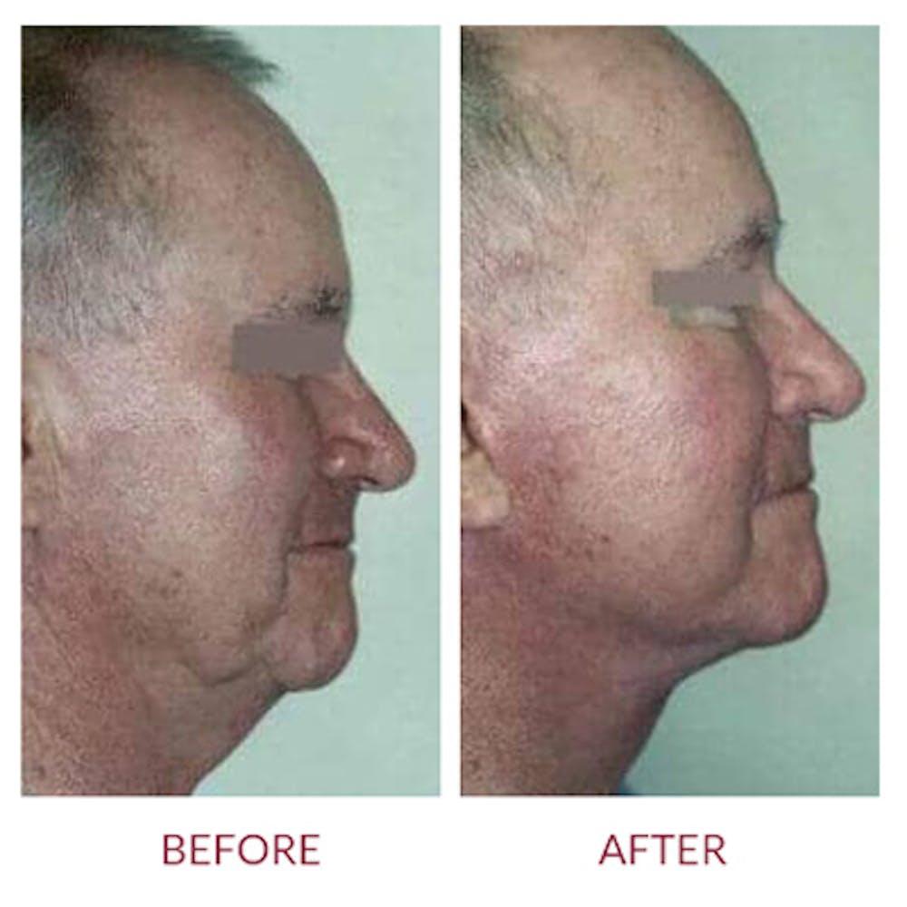 Facelift Gallery - Patient 26870268 - Image 1
