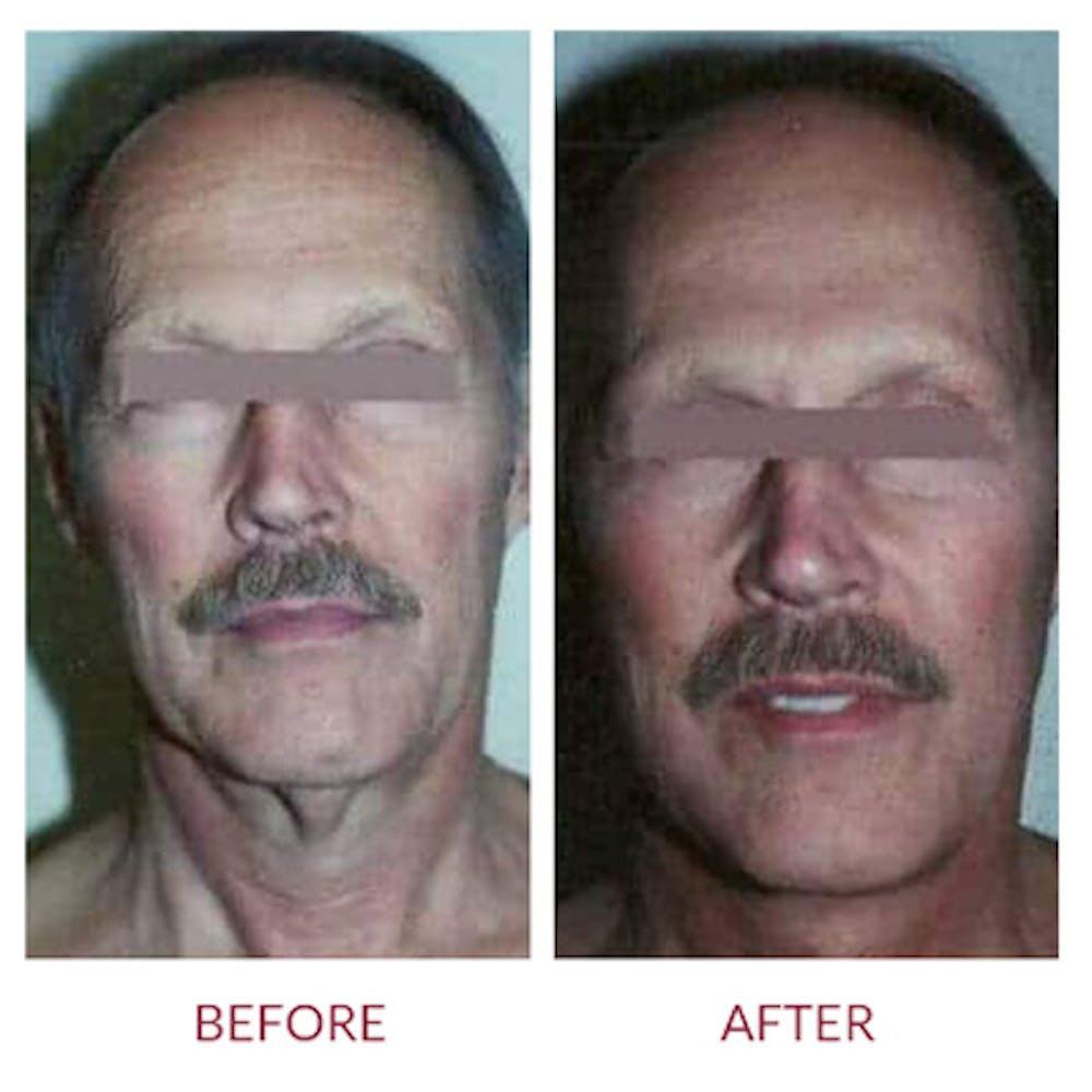 Facelift Gallery - Patient 26870267 - Image 1
