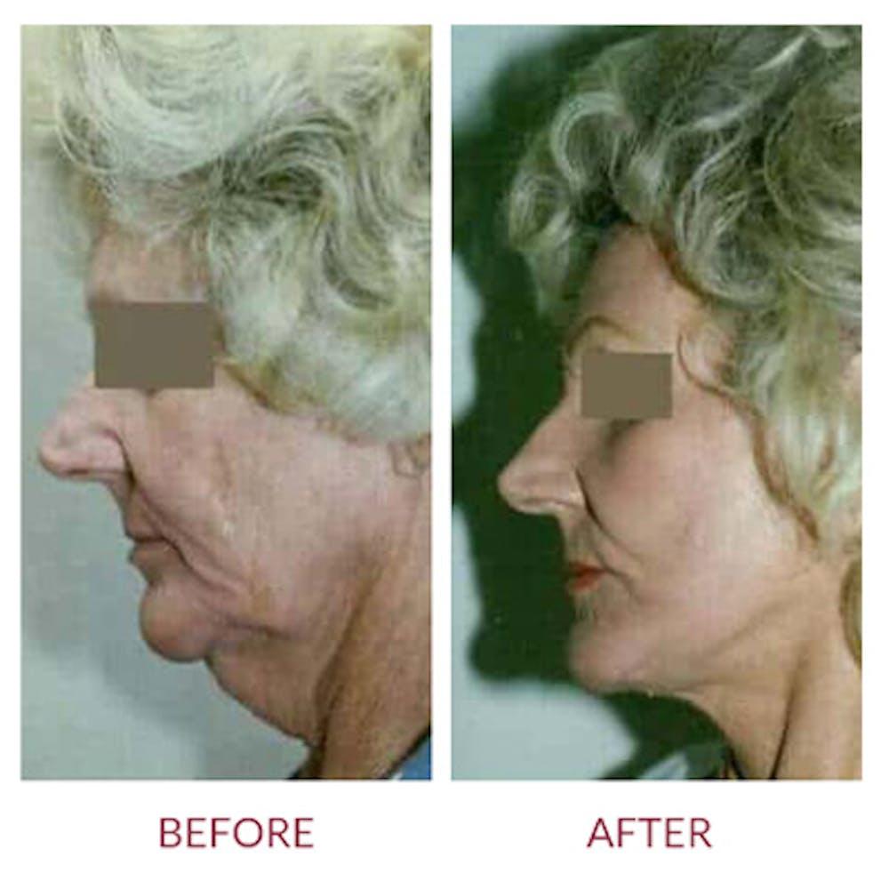Facelift Gallery - Patient 26870266 - Image 1