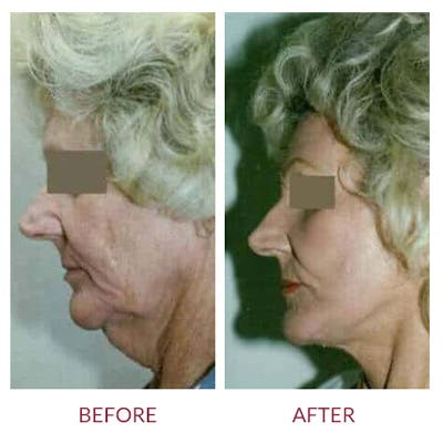 Facelift Gallery - Patient 26870266 - Image 1
