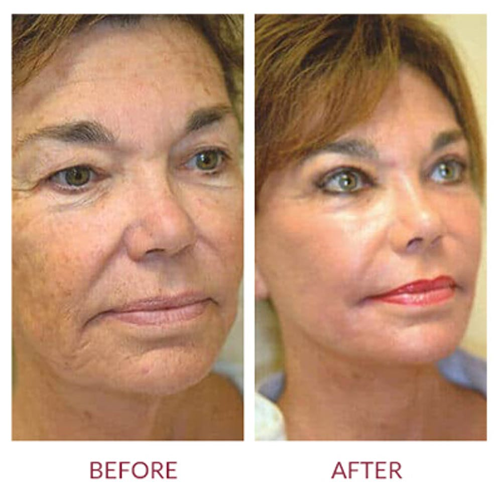 Facelift Gallery - Patient 26870265 - Image 3