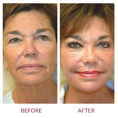 Facelift Gallery - Patient 26870265 - Image 2