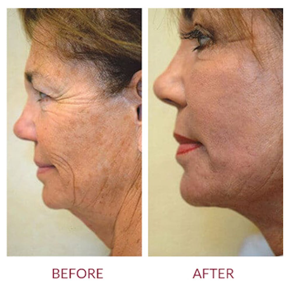 Facelift Gallery - Patient 26870265 - Image 1
