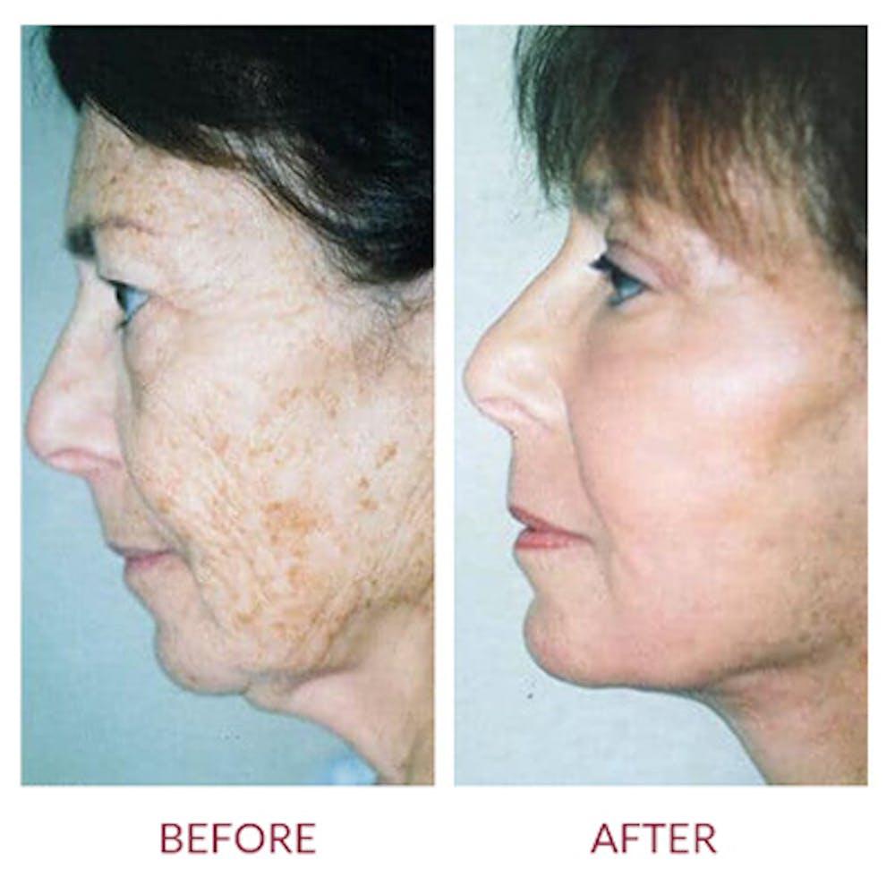 Facelift Gallery - Patient 26870264 - Image 1