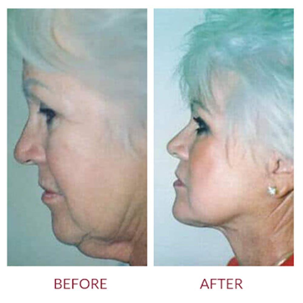 Facelift Gallery - Patient 26870261 - Image 3