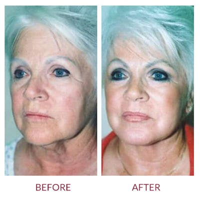 Facelift Gallery - Patient 26870261 - Image 2