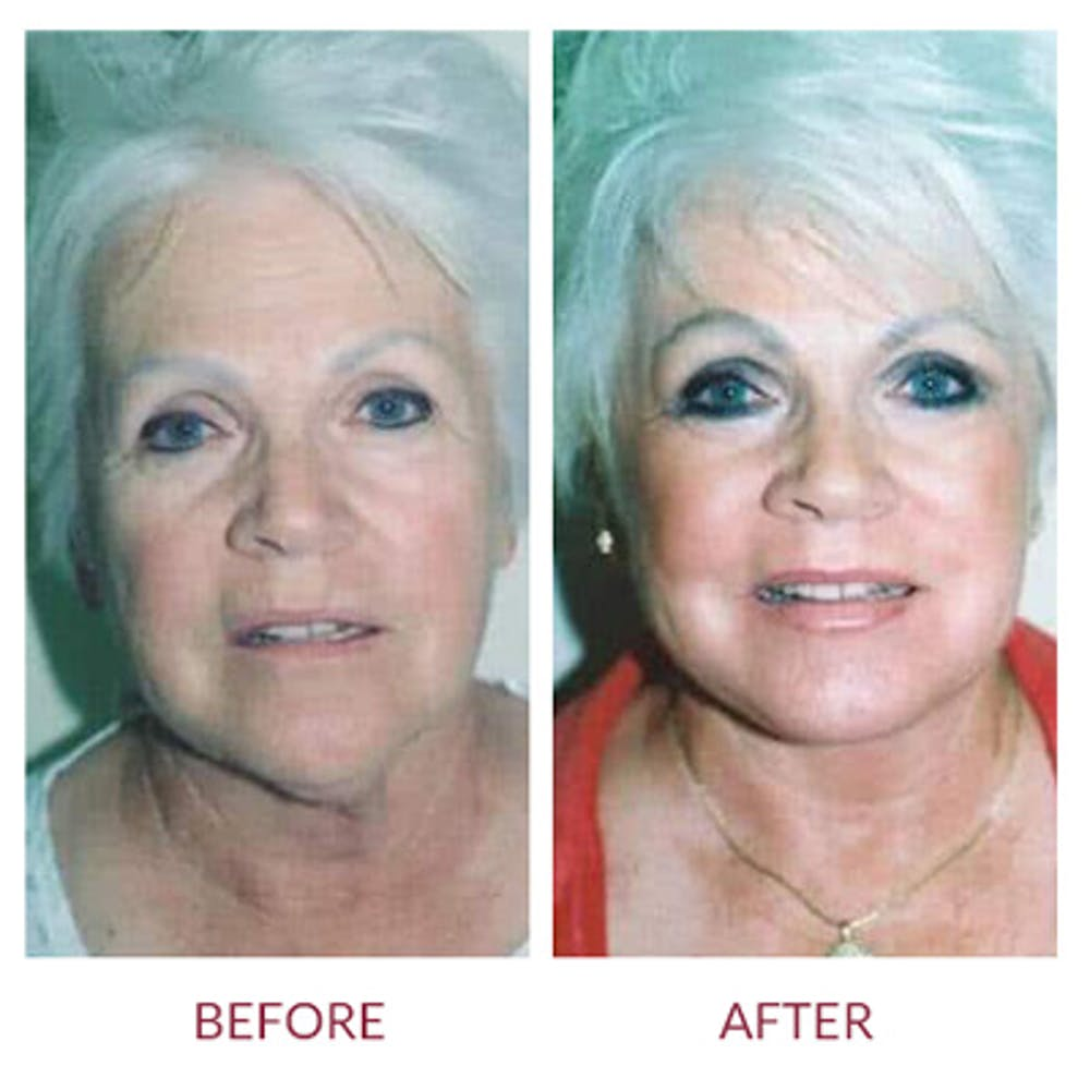Facelift Gallery - Patient 26870261 - Image 1