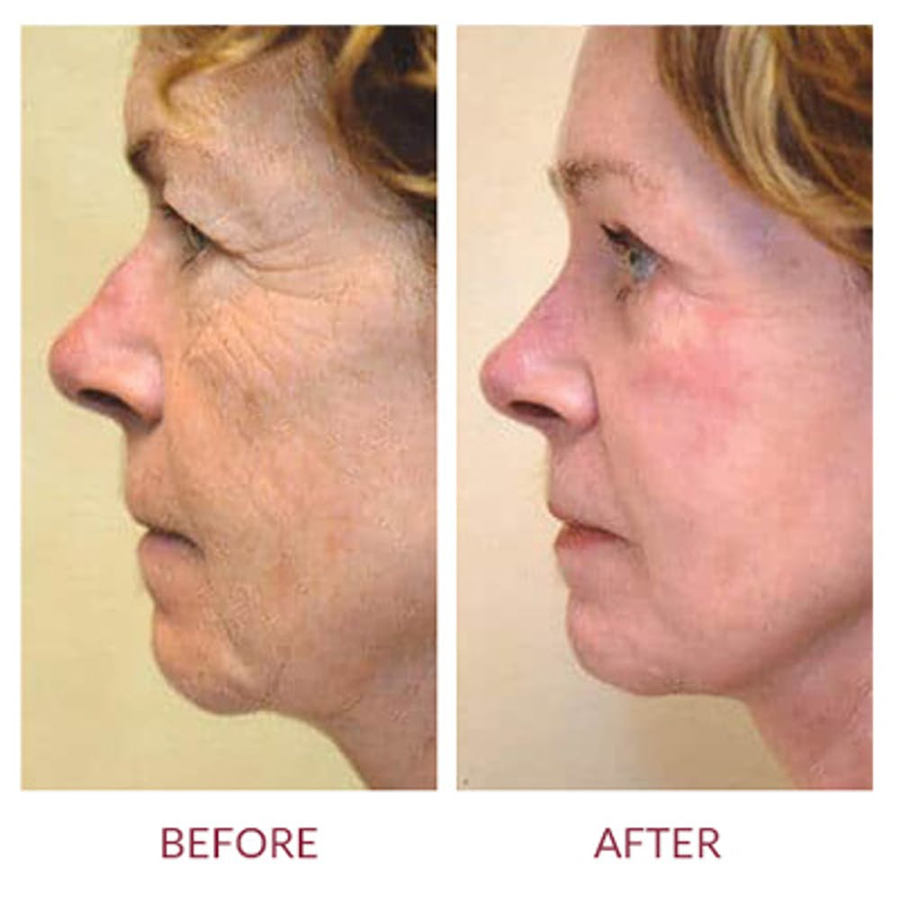 Facelift Gallery - Patient 26870259 - Image 2