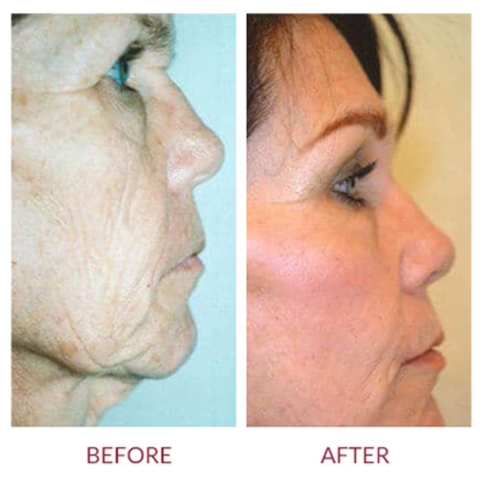Facelift Gallery - Patient 26870259 - Image 1