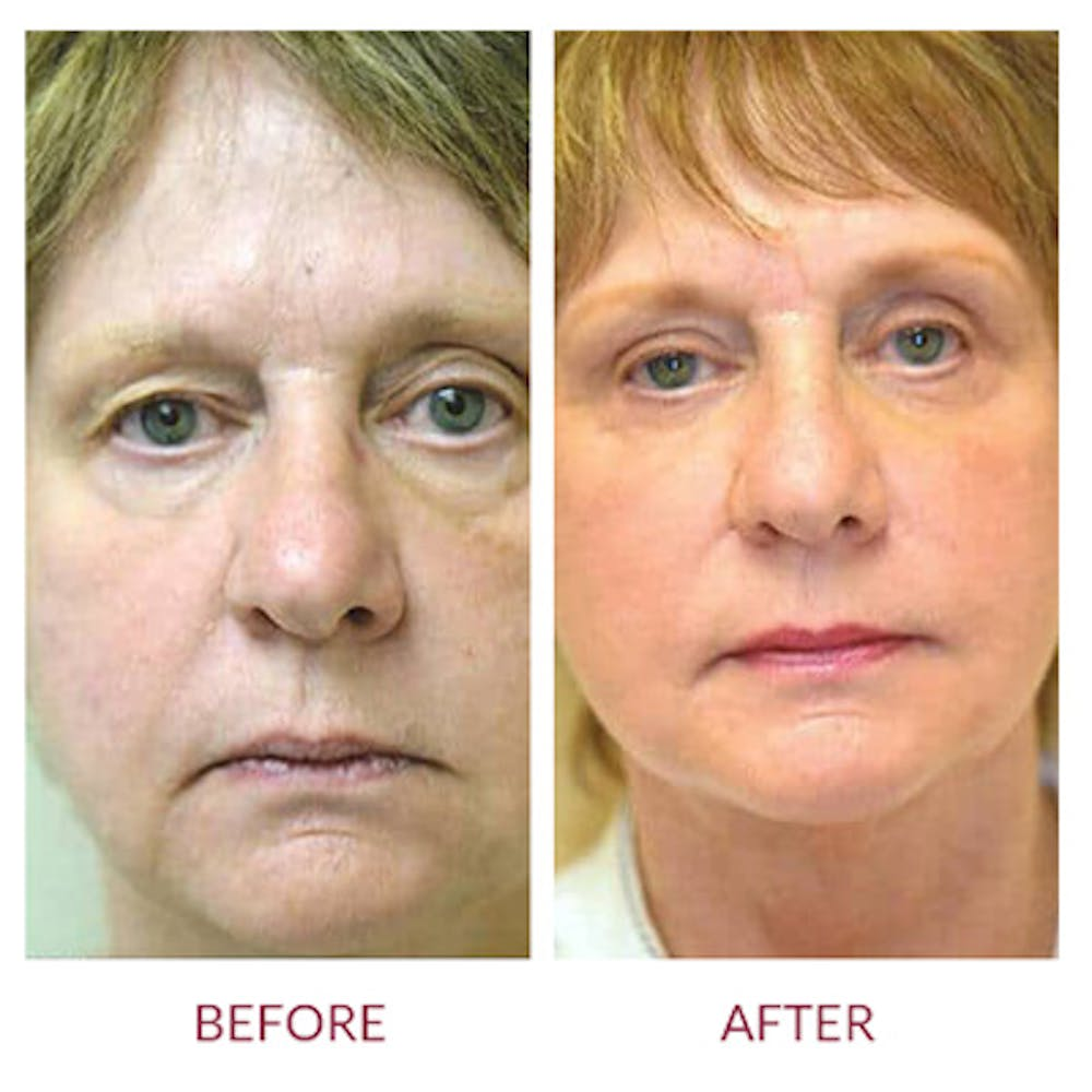 Facelift Gallery - Patient 26870258 - Image 1