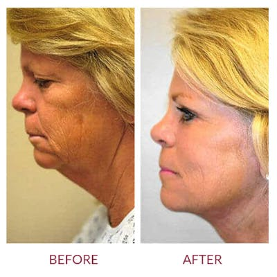 Facelift Gallery - Patient 26870257 - Image 2