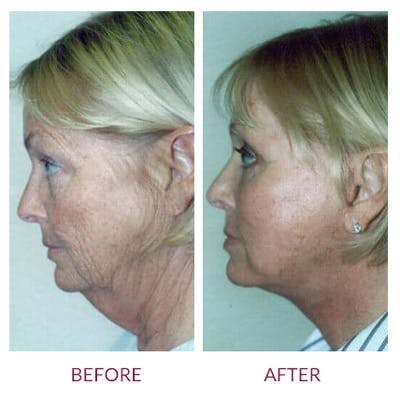 Neck Lift Gallery - Patient 26870288 - Image 1