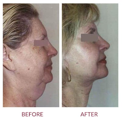 Neck Lift Gallery - Patient 26870287 - Image 1