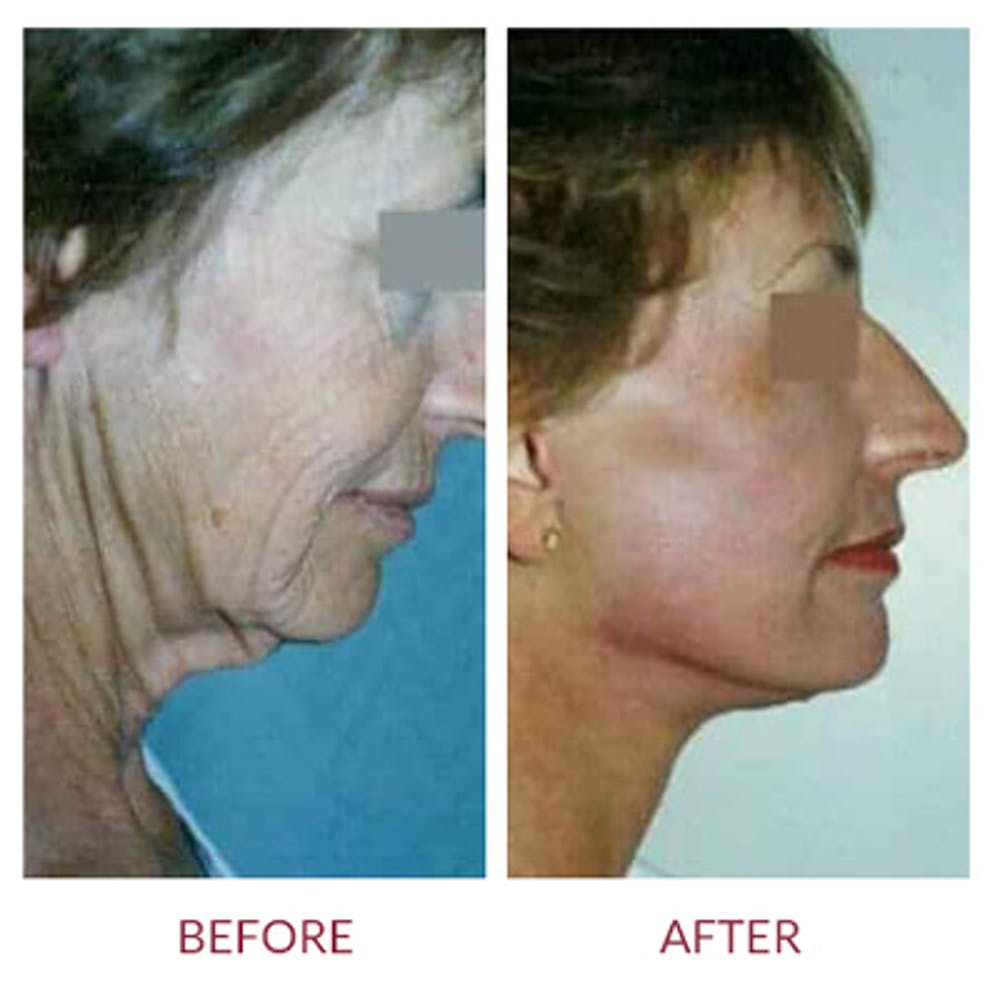 Neck Lift Gallery - Patient 26870285 - Image 1