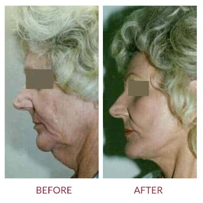 Neck Lift Gallery - Patient 26870283 - Image 1