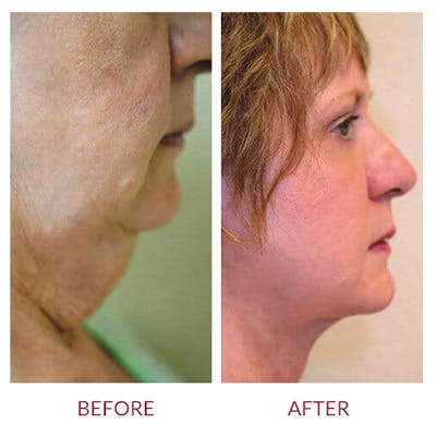 Neck Lift Gallery - Patient 26870282 - Image 1