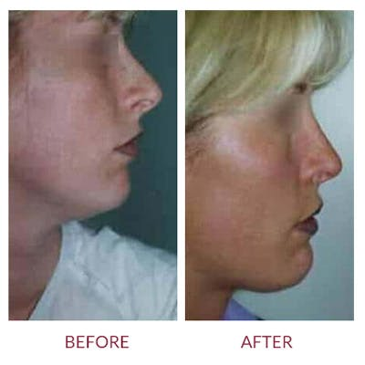 Rhinoplasty Gallery - Patient 26873278 - Image 1