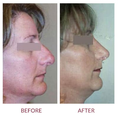 Rhinoplasty Gallery - Patient 26873277 - Image 1