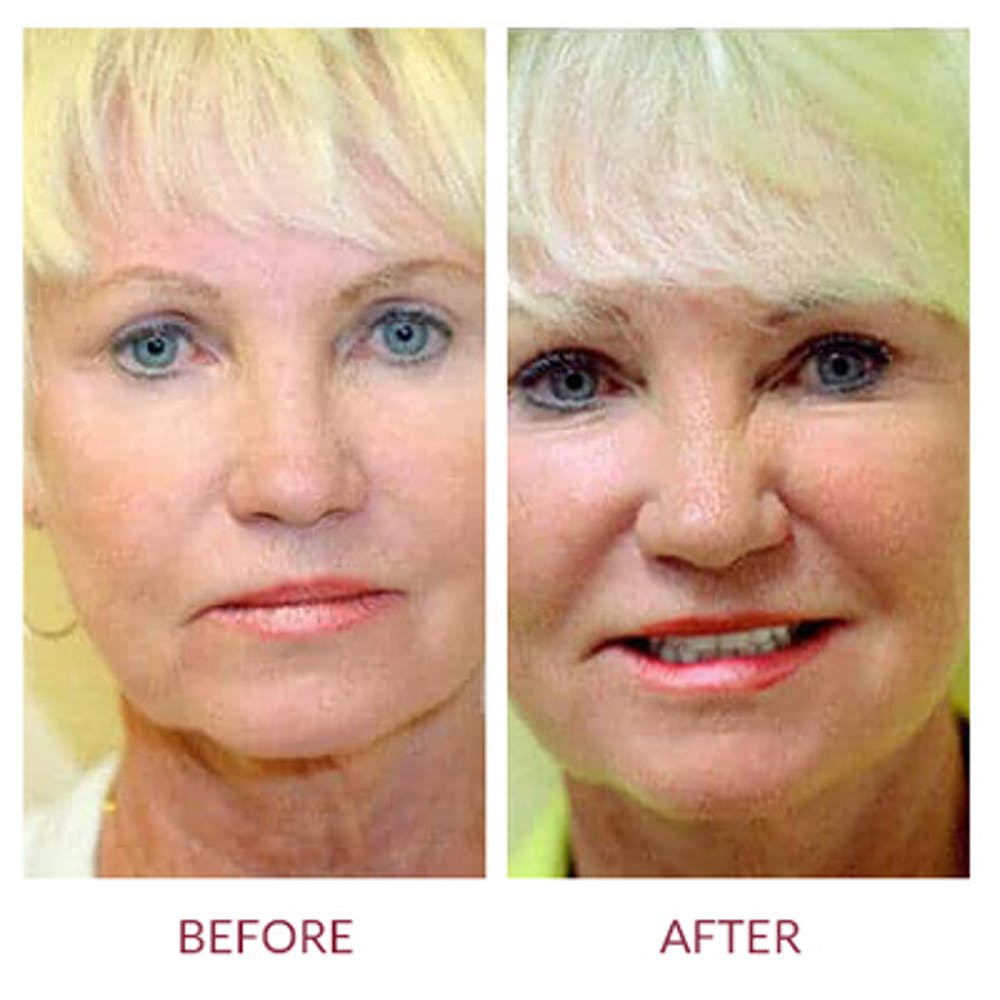 Ultherapy Gallery - Patient 26874674 - Image 3