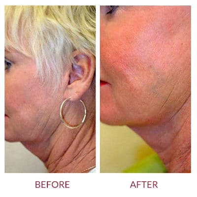Ultherapy Gallery - Patient 26874674 - Image 2