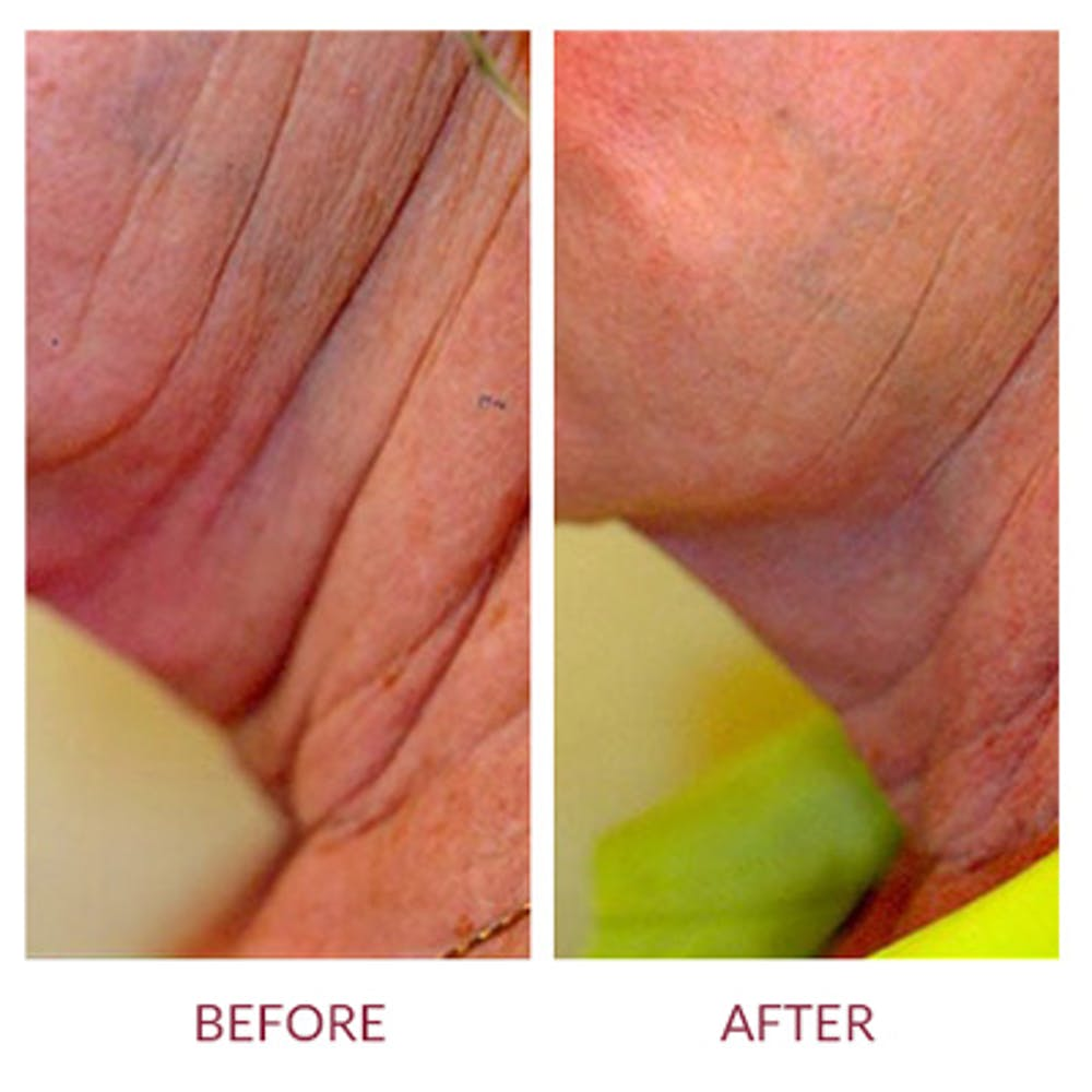Ultherapy Gallery - Patient 26874674 - Image 1