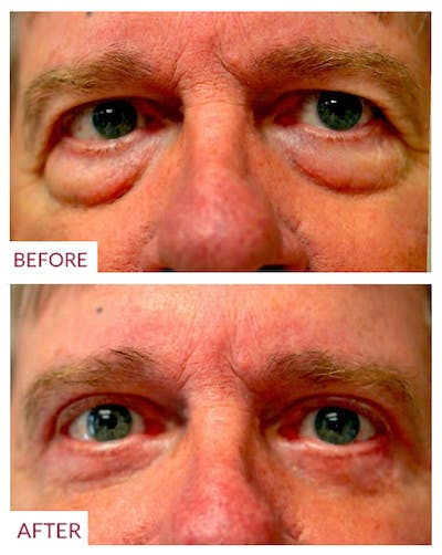 Eyelid Surgery Gallery - Patient 33369909 - Image 1